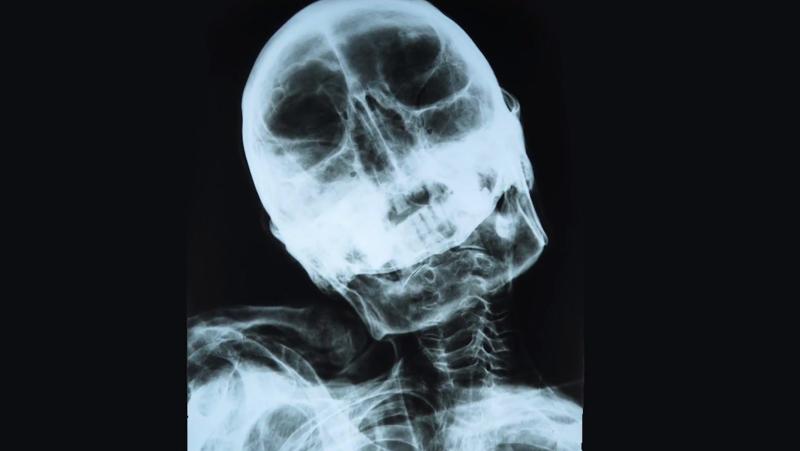 10 Nazca Mummy X Ray